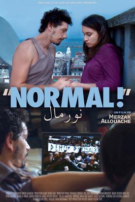 Normal!